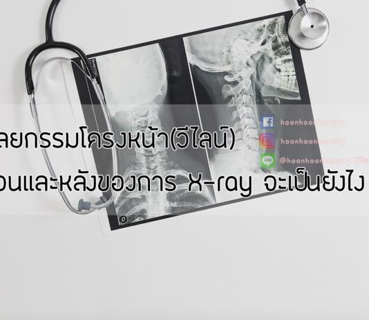 ริวิวศัลยกรรมวีไลน์